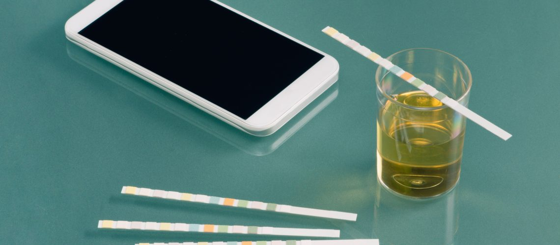 Urine testing kit with smart phone